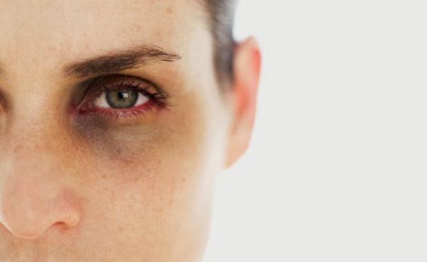 vérszegénység tünetei szemölcsök papilloma condyloma mi van